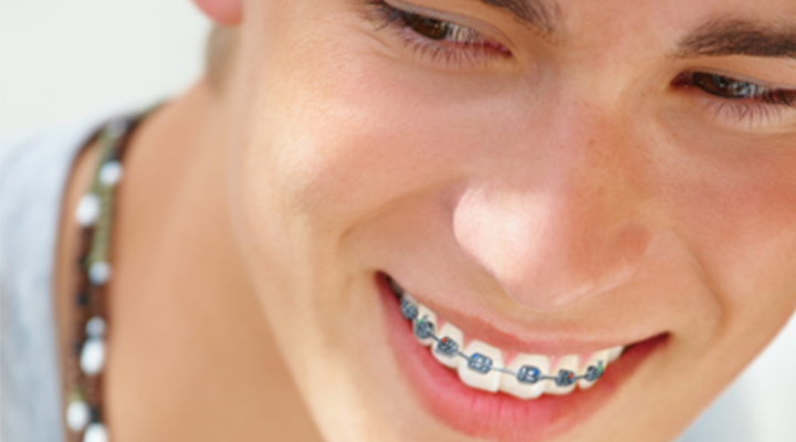 Top 3 Tips for Parents: Get Your Kid's Braces Off Faster ...